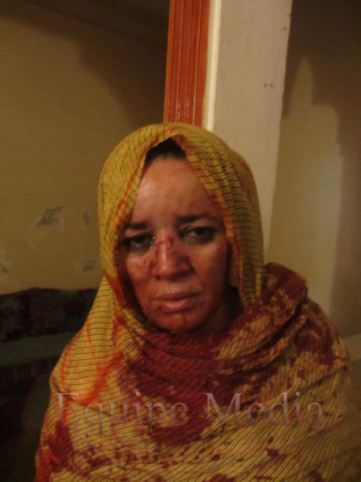 Marruecos tortura a ciudadanas saharauis mientras ningunea la supervisión de la ONU