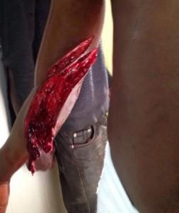 Heridas provocadas por las cuchillas de la valla de Melilla. Foto publicada por 20minutos.es