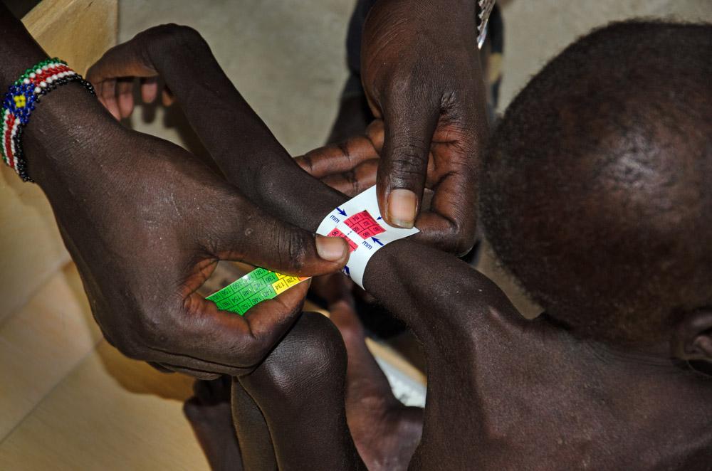 La desnutrición infantil se dispara hacia altísimos niveles en varias regiones de Sudán del Sur