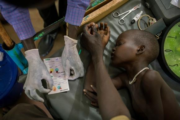MSF alerta de la falta de medicamentos esenciales en Sudán del Sur
